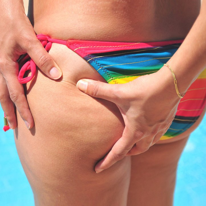 How-Get-Rid-Cellulite